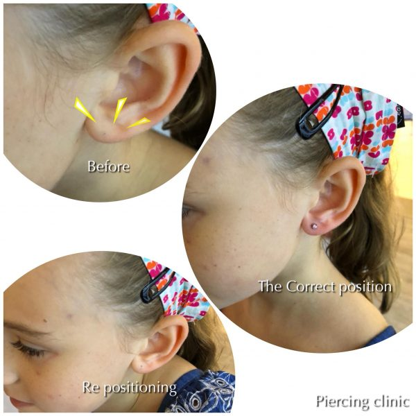 ear piercing for kids singapore piercing clinic stege gallery